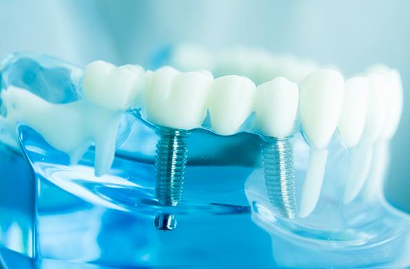 さわやか歯科のインプラント