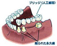 仮歯を使用する例