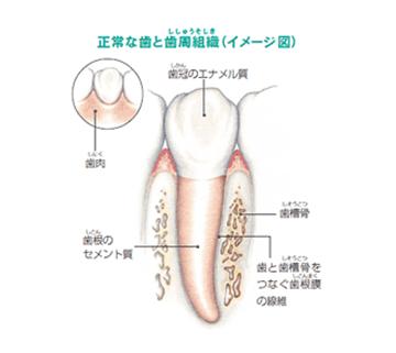 歯周病はどうして起こるの?