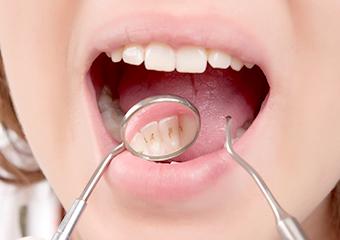 歯石・歯垢・バイオフィルムの除去